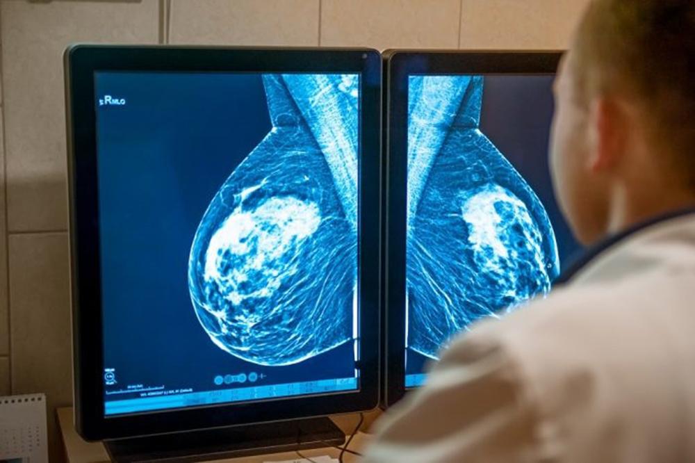 cancer mama metastasico